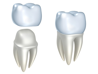Diagram of a two teeth with crowns at Roane Family Dental.