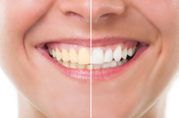 Before and after photo of teeth whitening treatment in West Linn, OR at Roane Family Dental.